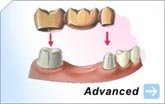 Bridges | Crowns | Gum and Bone Surgery | Dental Implants | Root Canals | Tooth Extractions | Wisdom Teeth
