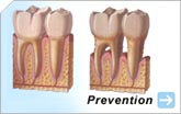 Adult Care | Baby Bottle Tooth Decay | Mouth Guards | Preventative Ages 1-5 | Preventative Ages 6-18 | Sealants